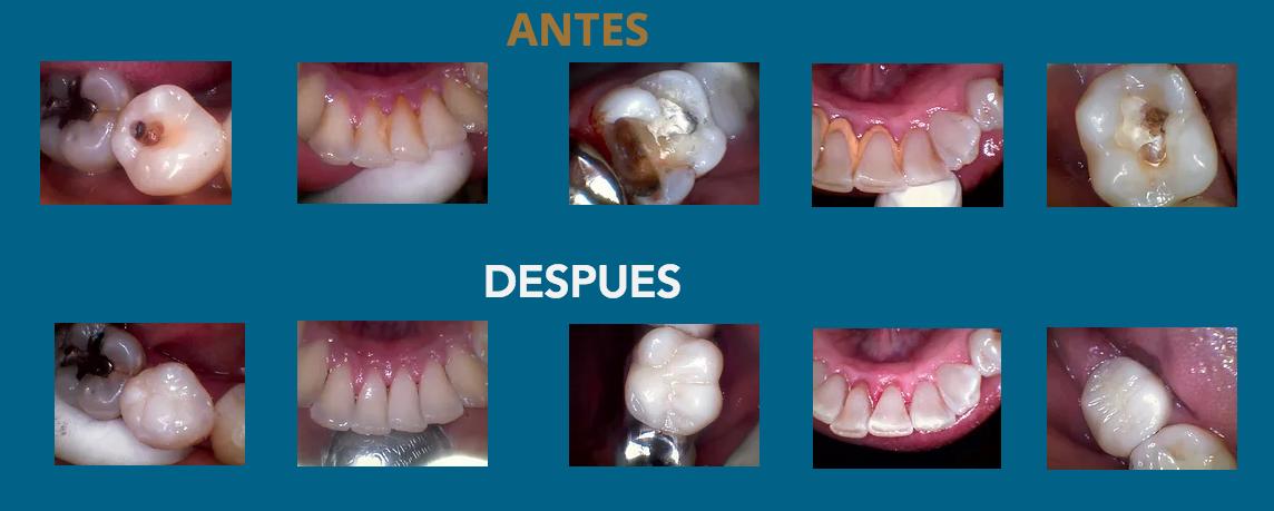 dentista_antes_y_despues_dental_jardines