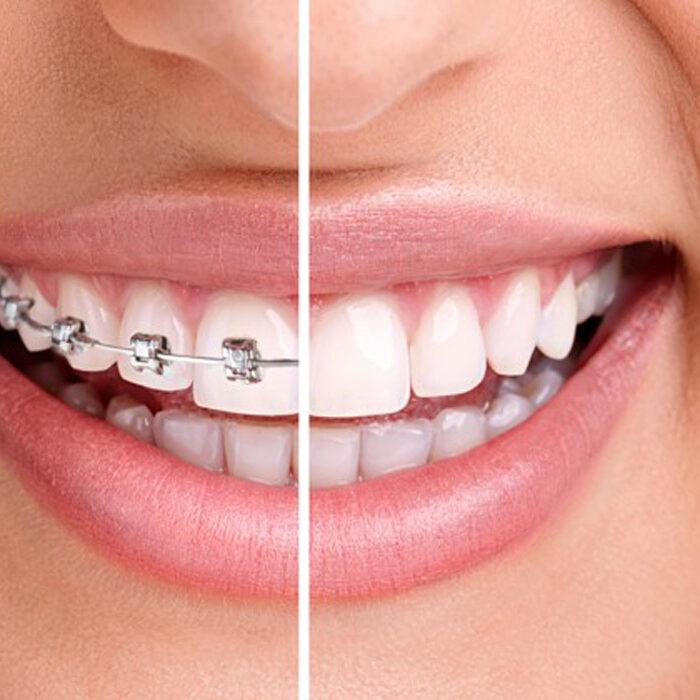 dental_jardines_ortodoncia_